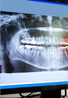 Dental x-rays on monitor