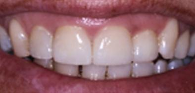 Repaired front teeth following decay