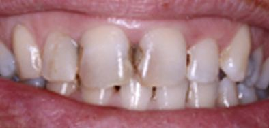 Patient with severe decay between front teeth