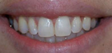 Smile with closed gap between front teeth