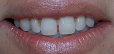 Smile with gap between front teeth