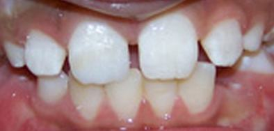 Smile with repaired front tooth
