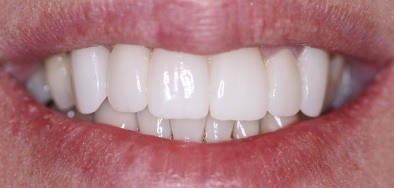 Bright white repaired front teeth