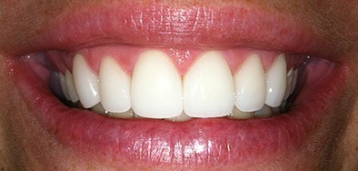 Flawlessly repaired gorgeous front teeth