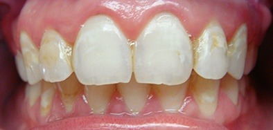 Severely damaged and discolored front teeth
