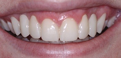 Flawless properly aligned healthy smile