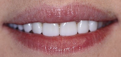 Grogeous white smile after repair