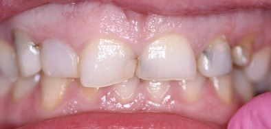 Severely damaged and discolored teeth