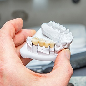 Model of smile with fixed bridge restoration