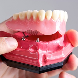 Model of implant retained denture