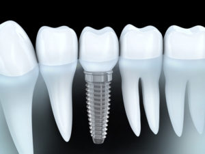 Dental implants in Arnold imitate natural teeth from root to crown. The process at JL Dental  is comfortable, and dental implants last indefinitely.