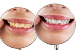 One photo of a woman's mouth showing stained teeth, another photo of a woman's mouth showing white teeth