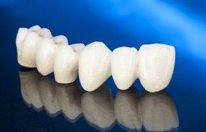 All-ceramic dental bridge in Arnold